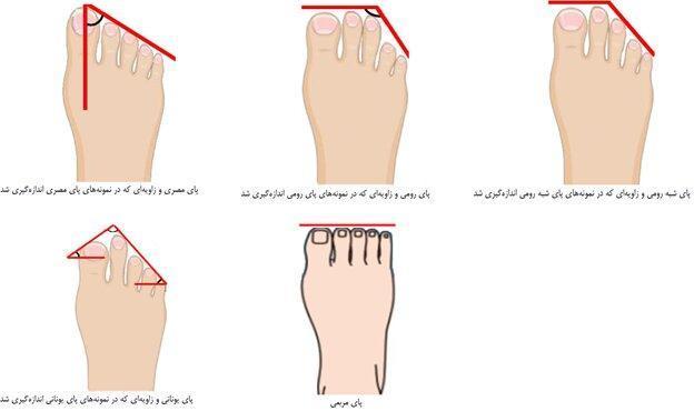 پای ایرانیان چه شکلی است؟