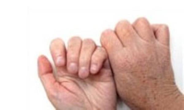 راهکار های ساده و مقرون به صرفه مسائل پوستی