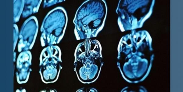 محققان برای تشخیص و درمان بیماری های مغزی محصولی تازه ارائه کردند